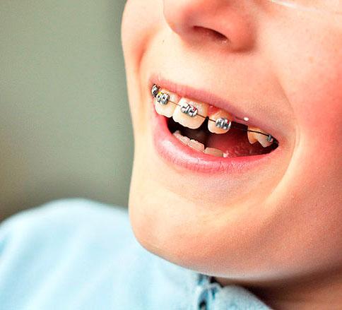 детский ортодонт тюмень