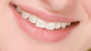 улыбка с брекетами Тюмени цены