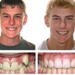 выравнивание зубов брекетами Тюмень